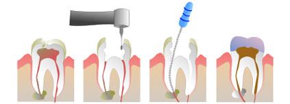 Nach grau verfärbt zahn wurzelbehandlung sich Toter Zahn