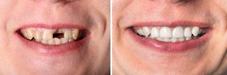 Zahn Verfärbt Sich Grau